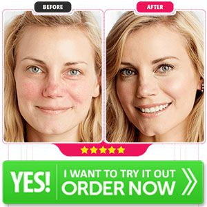 Edivaderm Cream〖Reviews 2020〗Fast Acting Formula For Your Skin!